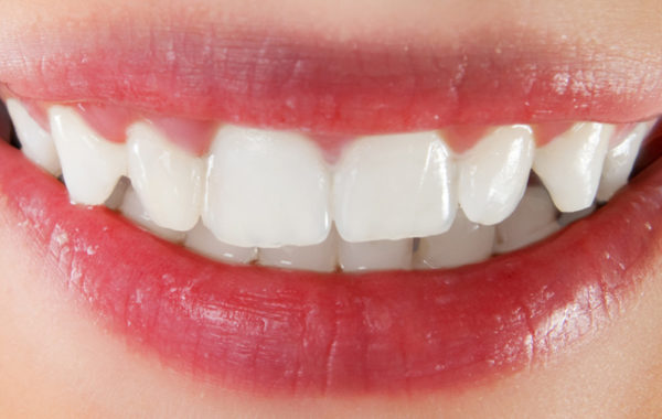 Zahnersatz Farchant
